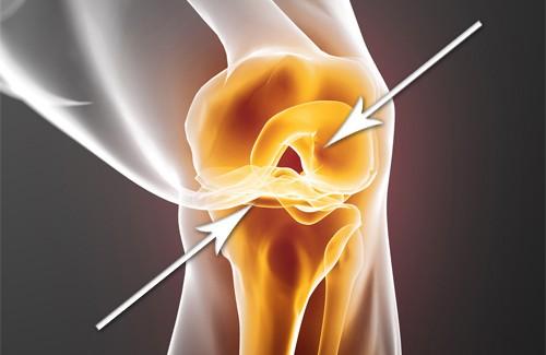 comment r g n rer rapidement des cartilages endommag s sant nutrition. Black Bedroom Furniture Sets. Home Design Ideas