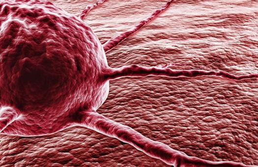 Cellule-cancéreuse