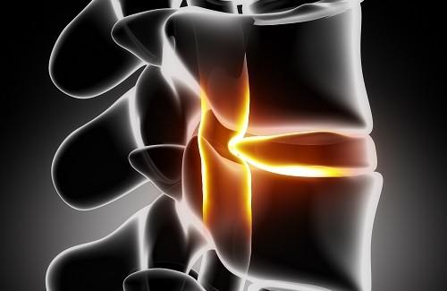 rp_Hernia-ciatica-500x325.jpg - Santé Nutrition
