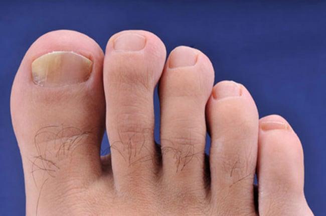 Les ongles sombres sur les pieds le traitement