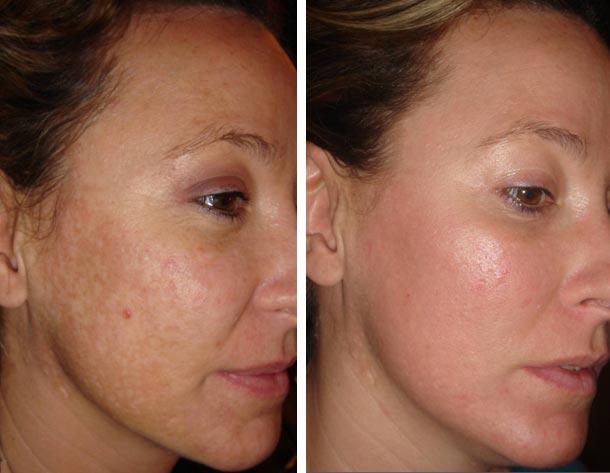 cicatrice-acne