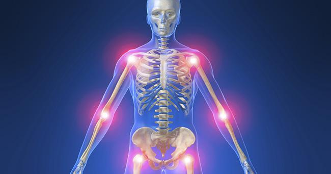 rhumatismes2