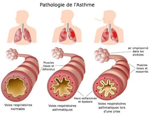 asthme-remedes-naturels