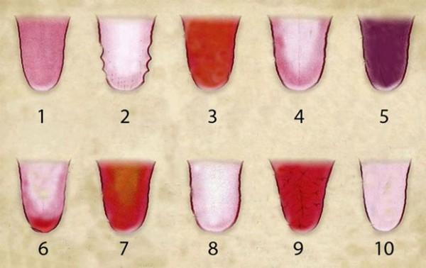 couleur-langue-sante