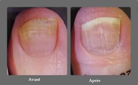 soigner une mycose des pied
