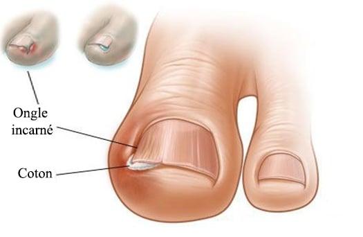 Longuent salicylique au microorganisme végétal sur les pieds
