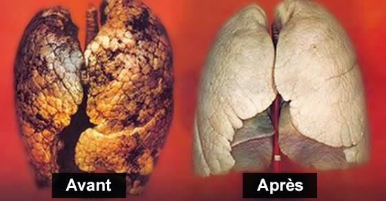 Les moyens efficaces pour cesser de fumer
