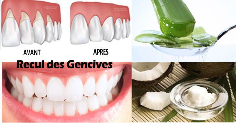 aloe vera dents blanches