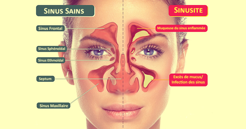 infection-sinus