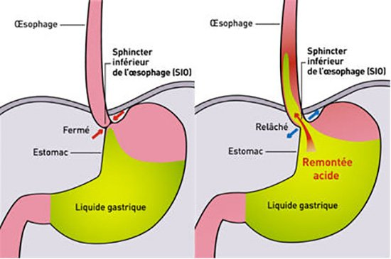 stopper reflux gastrique