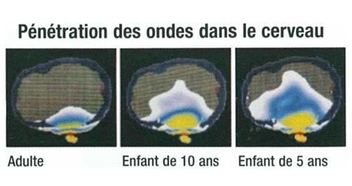 Ondes_cerveau2