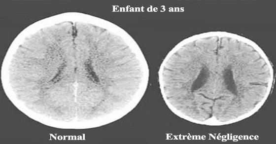 cerveau-enfant