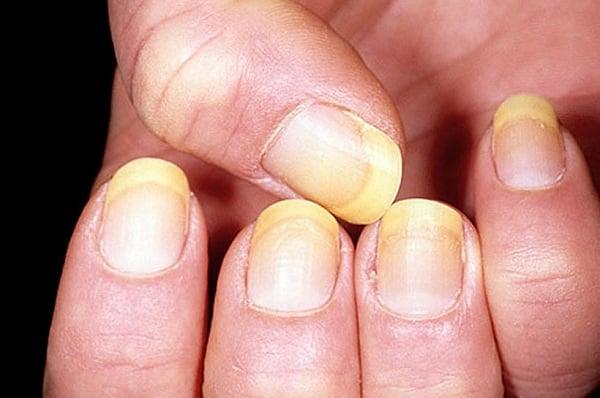 Le psoriasis à bras des photos les symptômes le traitement