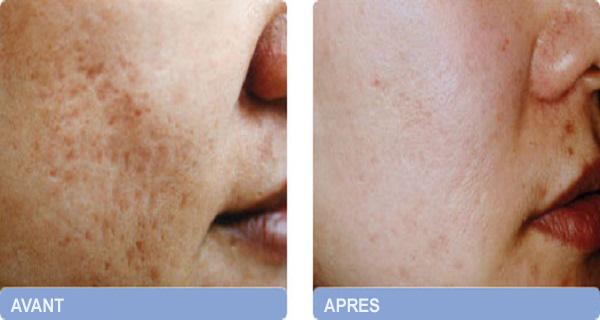 cicatrices-acnee