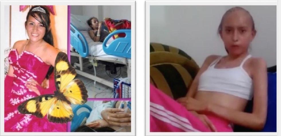 ob_311da7_karen-avant-et-apres-sa-vaccination