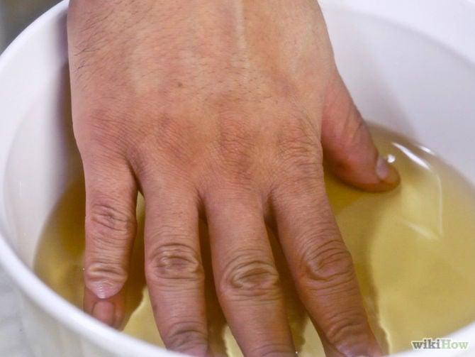 vinaigre-de-cidre-arthrite