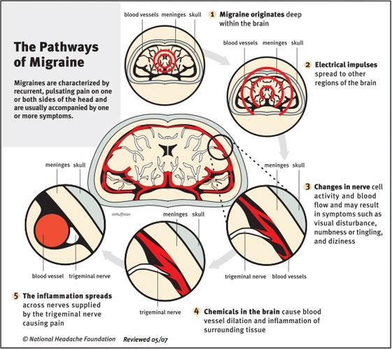 migraine3