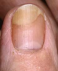 ongles-Onycholysis