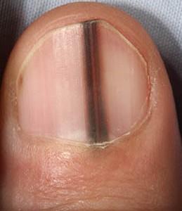 ongles-lignes-sombres