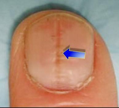 ongles-onychorrhexie