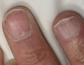 ongles-petites-stries-brunes