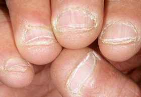 ongles-ronges