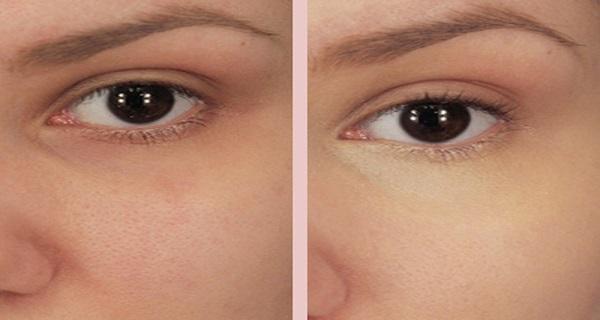 Préférence Mettez du bicarbonate de soude sous vos yeux et les résultats  ED62