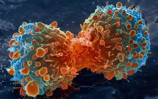 cancer_18799100