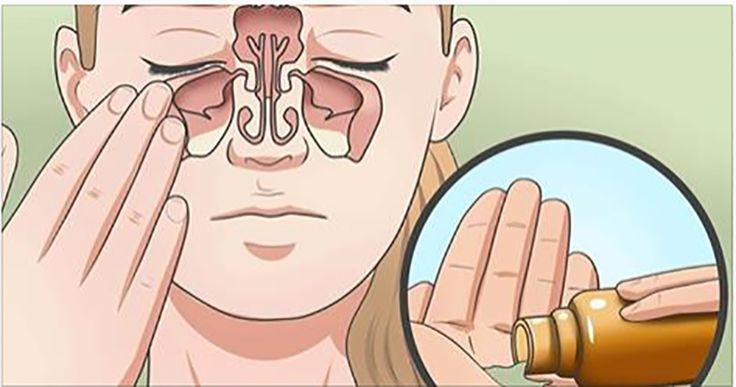 huiles-essentielles-lesions-cerebrales