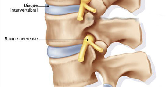 vertebre_disque_vertebral