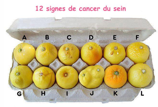 12-signes-cancer-du-sein