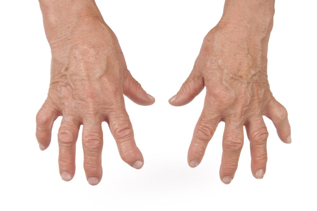 Old Woman's Hands Deformed From Rheumatoid Arthritis
