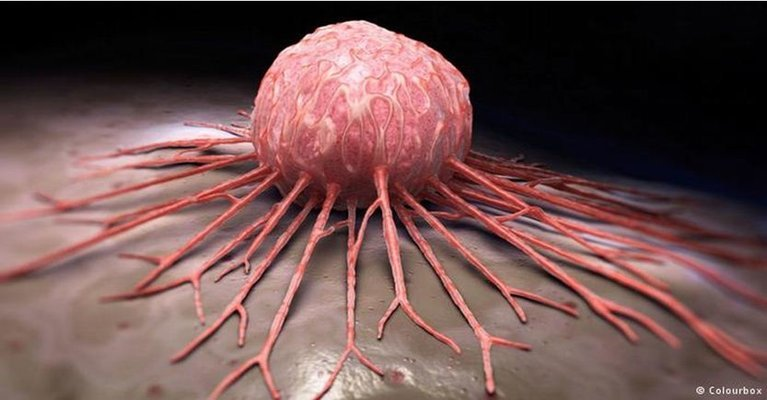cancer-gueri-2-semaines
