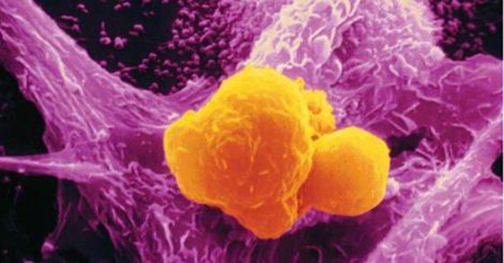 curcuma-cancer
