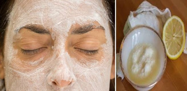 appliquez ce masque au bicarbonate de soude et au citron sur votre visage et quelque chose d. Black Bedroom Furniture Sets. Home Design Ideas