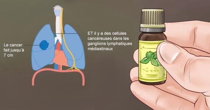 cancer-huiles-essentielles