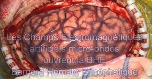 compteurs-linky-ondes-electromagnetiques2