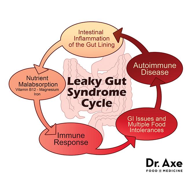 leaky_cycle1