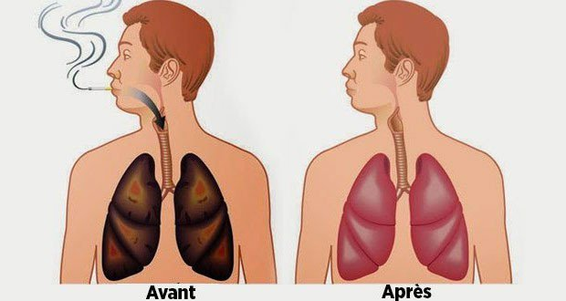 poumons-fumeurs