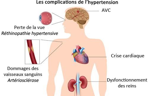menthe et tension artérielle