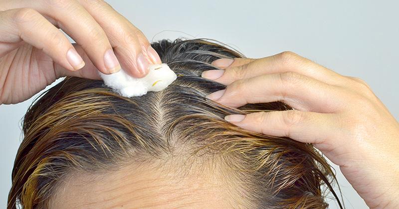 huile de coco pour chute de cheveux