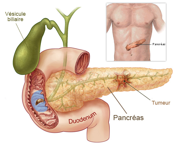 cancer-du-pancreas