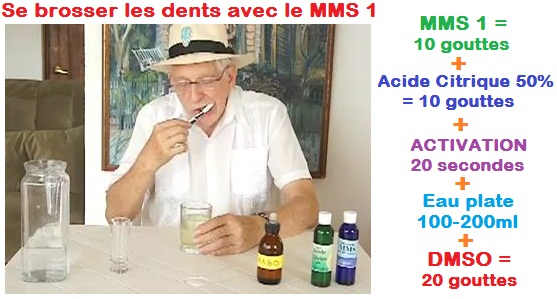 abces-dentaire-mms-jim-humble