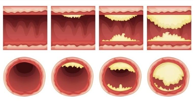 arteres