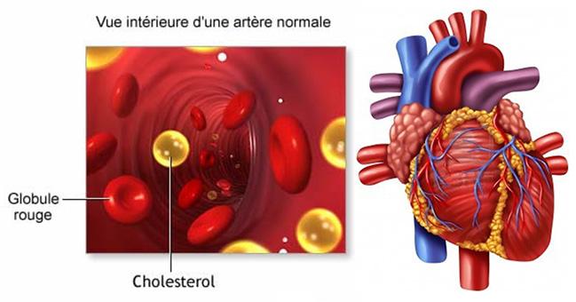 cholesterol-coeur2