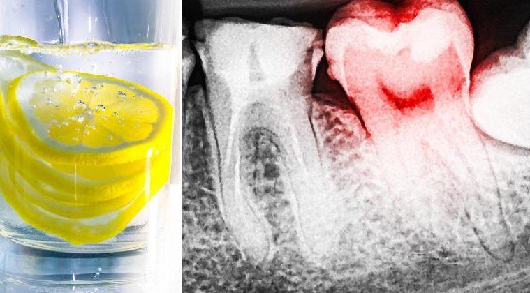 eau-citronee-dents