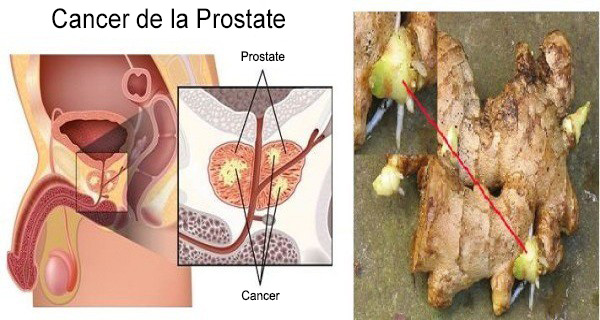 cancer-prostate-gingembre