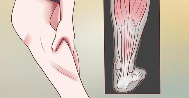 Image result for Syndrome des jambes sans repos lié à une carence en magnésium