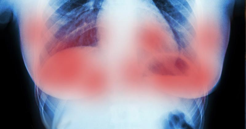 medicament-cancer-du-sein1