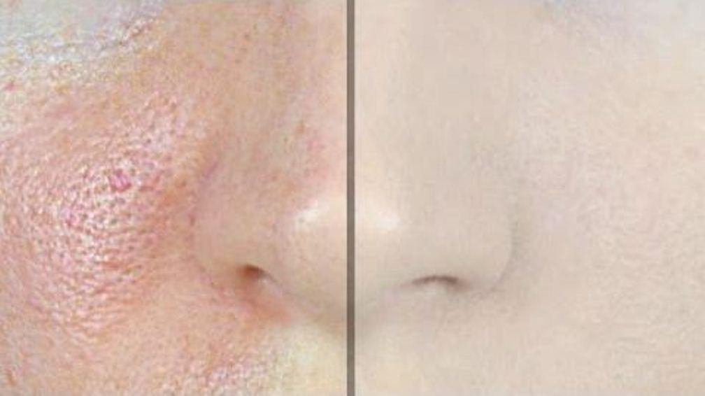 Le masque-skrab pour la personne des acnés et les taches de pigment 100 poudre